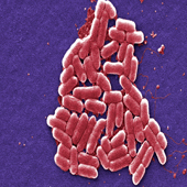 Ebola Virus (Photo: Courtesy Frederick Murphy)